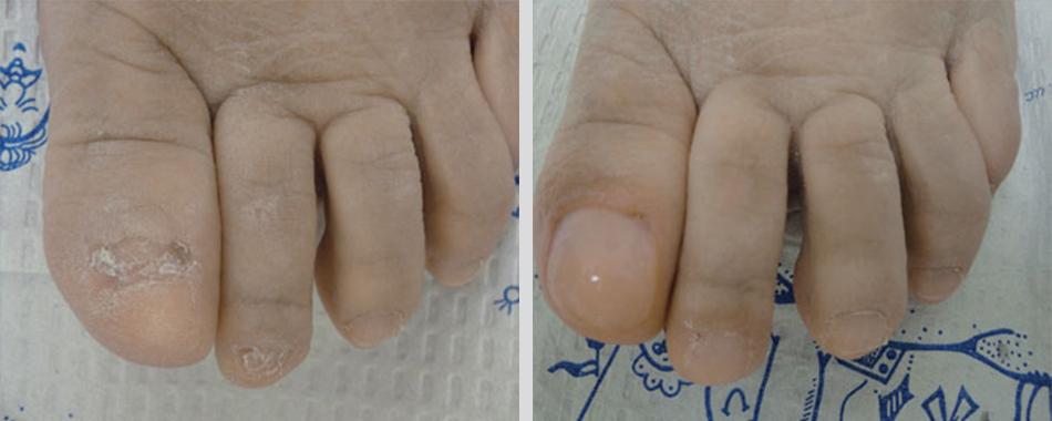 KeryFlex Toenail Restoration